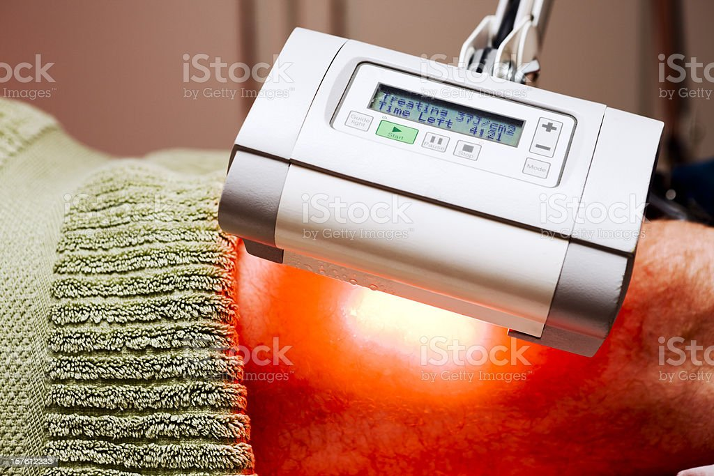 Photodynamic Therapy (PDT) treating skin cancer on leg stock photo