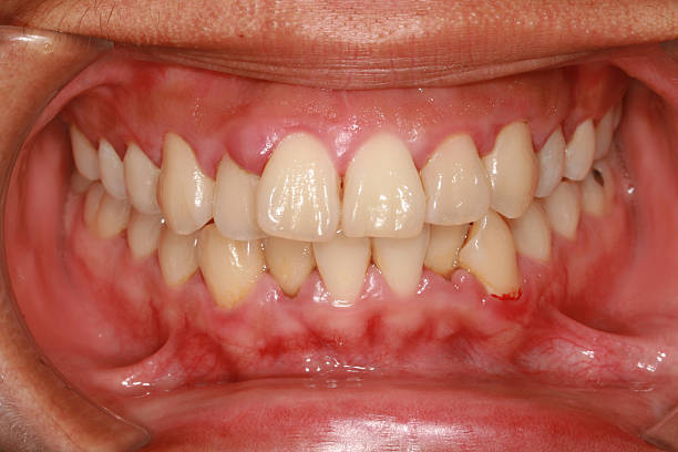 A photograph of a mouth displaying gingivitis stock photo