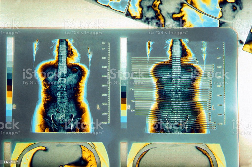 Photographs of human cat scans to search for illnesses royalty-free stock photo