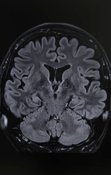 Photography of human brain mri stock photo more pictures of photography of human brain mri stock photo more pictures of anatomy istock ccuart Image collections