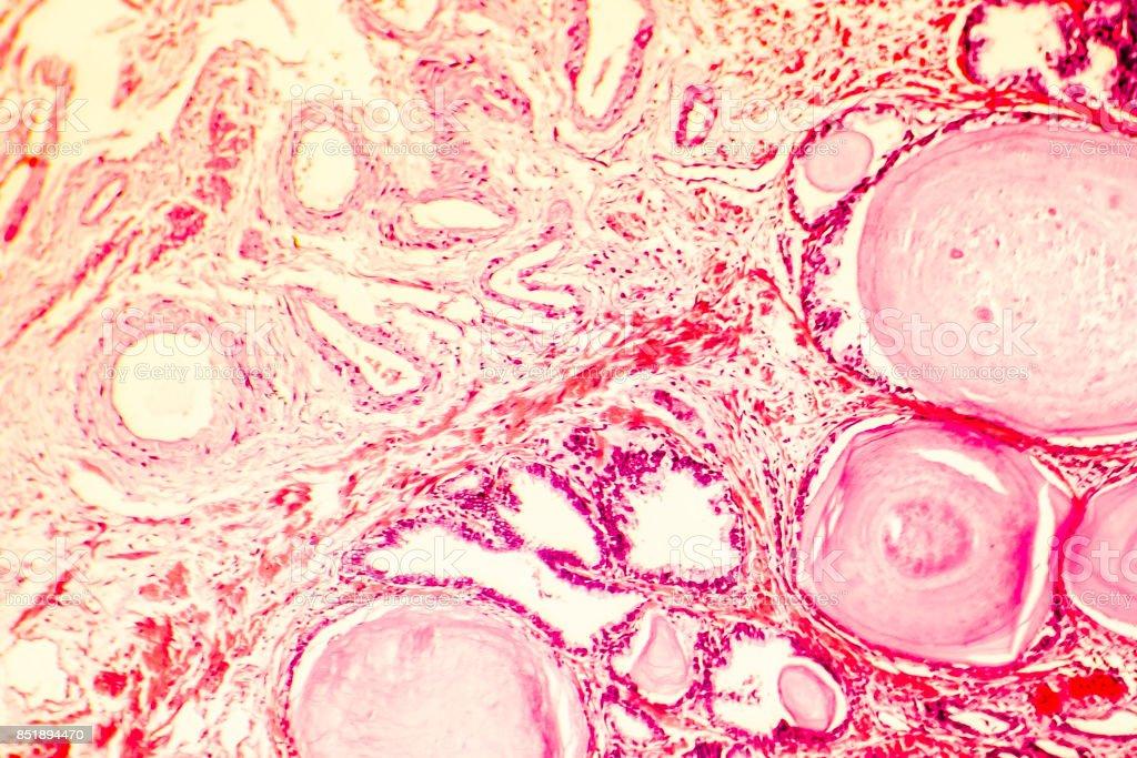 prostata enfermedad hiperplasia