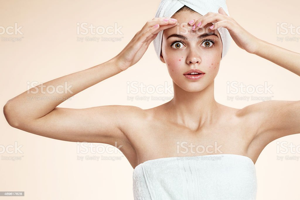 photos of ugly problem skin girl on beige background​​​ foto