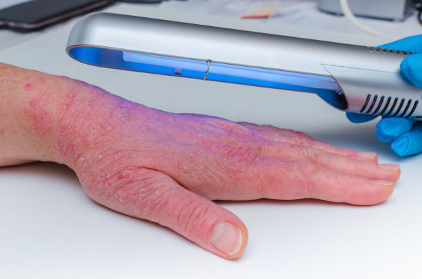 Phototherapy dermatosis. Treatment of skin diseases - psoriasis, ekzemy, dermatitis, vitiligo-irradiation with narrow-band ultraviolet. Phototherapy dermatosis. Treatment of skin diseases - psoriasis, ekzemy, dermatitis, vitiligo-irradiation with narrow-band ultraviolet. irradiation stock pictures, royalty-free photos & images