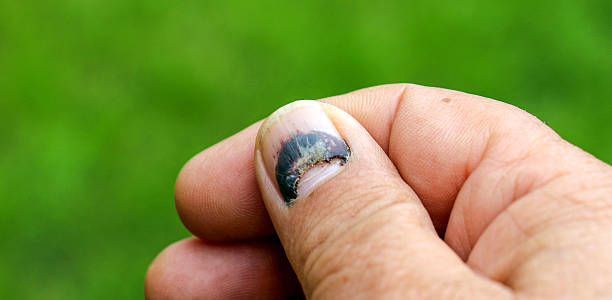 Physical injury .Wounded human hand finger nail stock photo