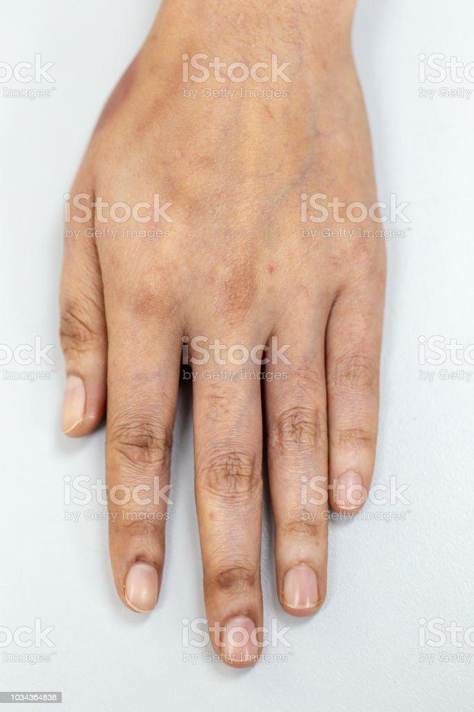 Eine Physische Gewebe Nerven Sehnen Zur Hand Stockfoto Und Mehr