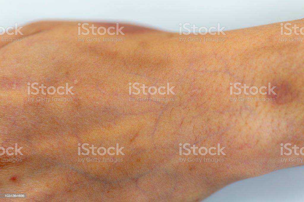 Eine Physische Gewebe Nerven Sehnen Zur Hand Stock Fotografie Und