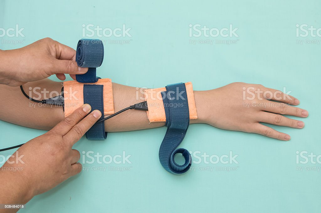 Physical theraist apply electrode on patient forearm, physical t stock photo