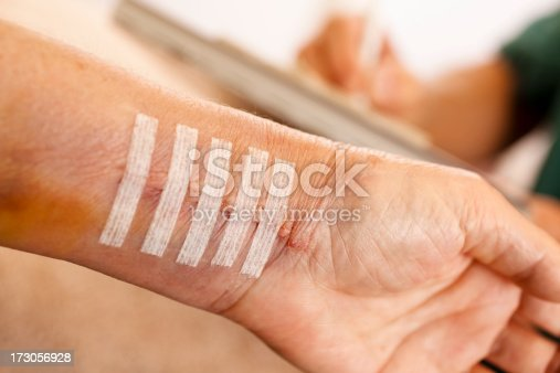 istock Physical therapy after wrist surgery 173056928