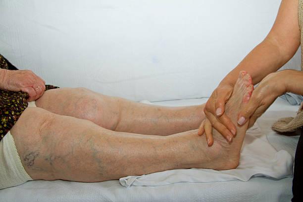 Varice pe picioarele bărbaților fotografie