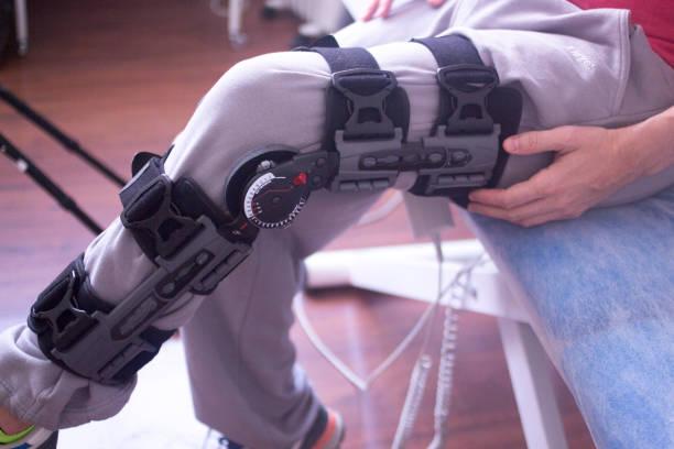 Terapia física mecical clínica Fisioterapia ortopédica pierna ajustable llave para lesión en la rodilla y rehabilitación. - foto de stock