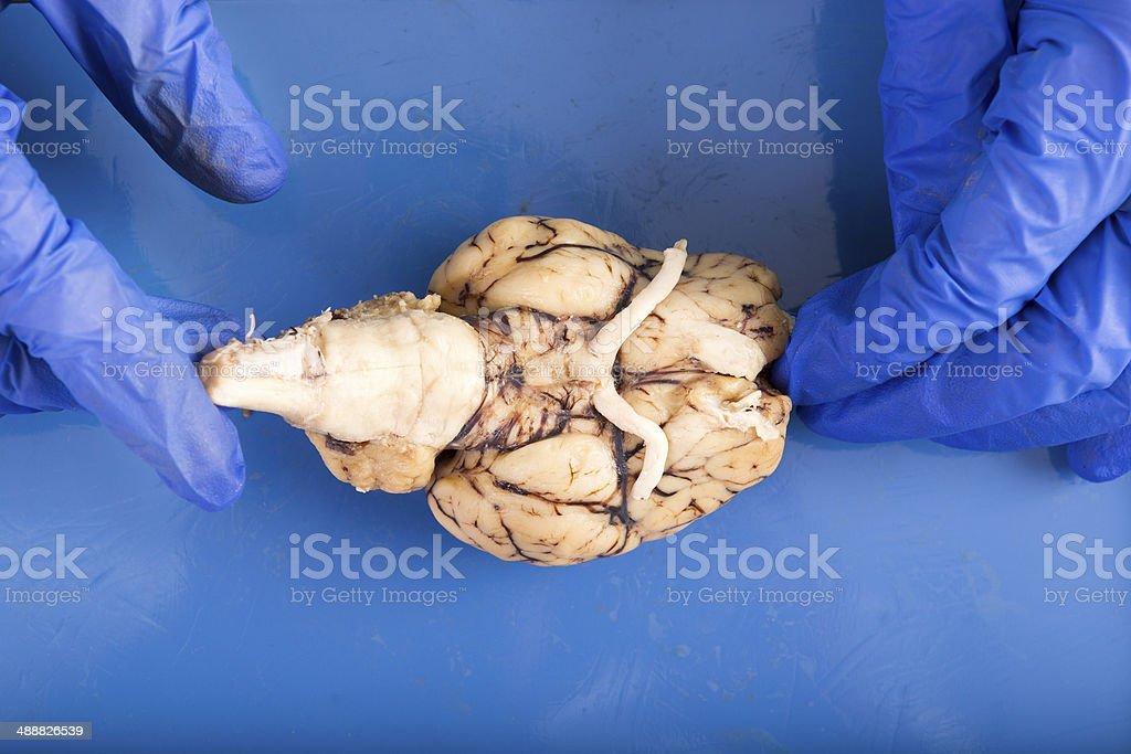 Fotografía de Estudiante De Fisiología Disección De Un Cerebro y más ...