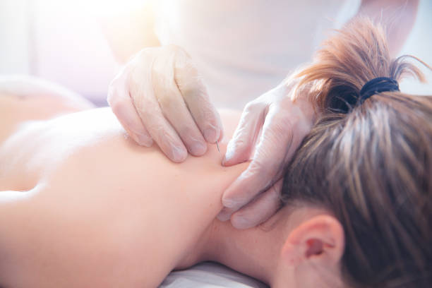 Physiotherapist doing acupuncture to a young woman on her back stock photo