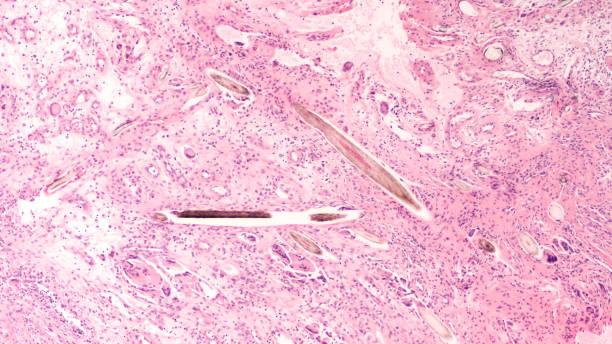 Pilonidal Disease stock photo