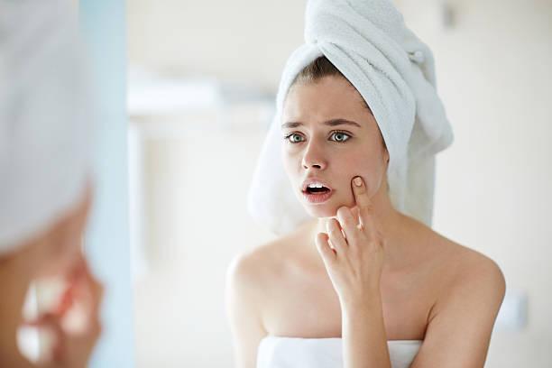 Pimple on cheek stock photo