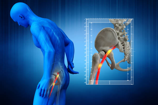 844 Sciatic Nerve Stock Photos Pictures Royalty Free Images Istock