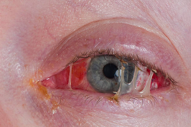Pink eye after surgery stock photo