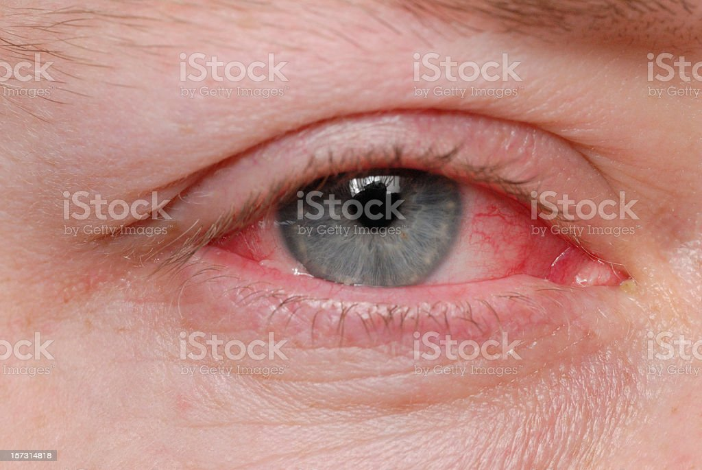 Pink eye stock photo