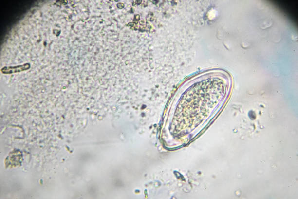 pinworm egg under light microscopy stock photo