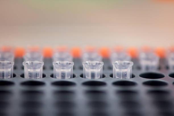 Pipette tips in orange box, for PCR testing stock photo