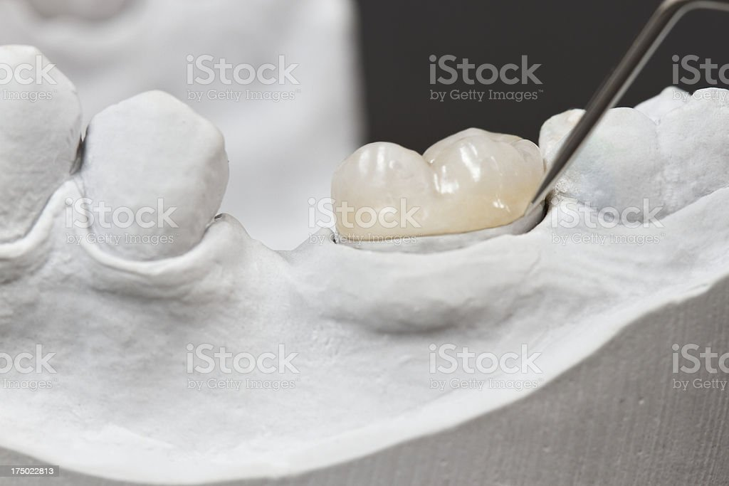 Placement of a dental inlay on a cast model using a tool stock photo