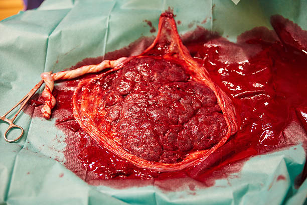 placenta with umbilical cord - placenta stock photos and pictures