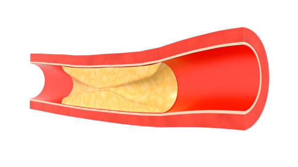 Plaque in blood vessels stock photo