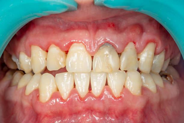 plaquette van de patiënt, steen. tandheelkunde behandeling van tandplaque, professionele mondhygiëne. het concept van schade aan roken en reiniging van de tanden - tandvleesontsteking stockfoto's en -beelden