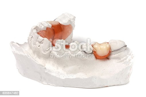 istock plaster cast of teeth with removable partial denture isolated on 635847482