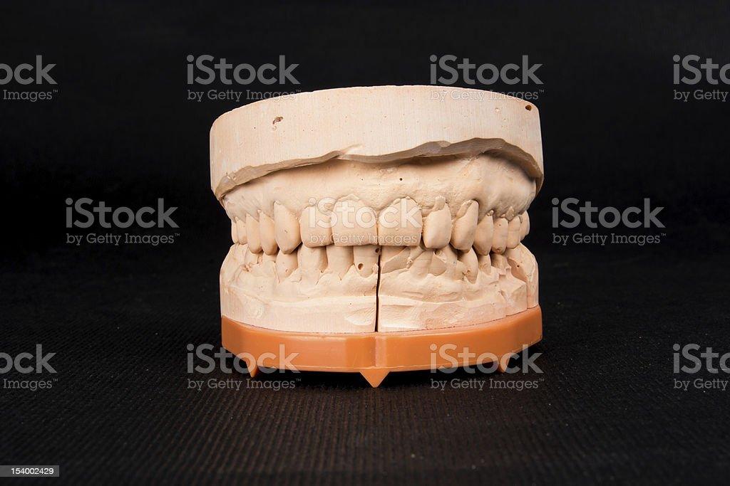 Plaster dental mold royalty-free stock photo