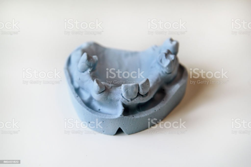Plaster model of the jaws. Dentures and dentistry. Dental prosthesis, dentures, prosthetics work. Dental technician in pricess of making dentures. The plaster model of the jaws. Stomatology. stock photo