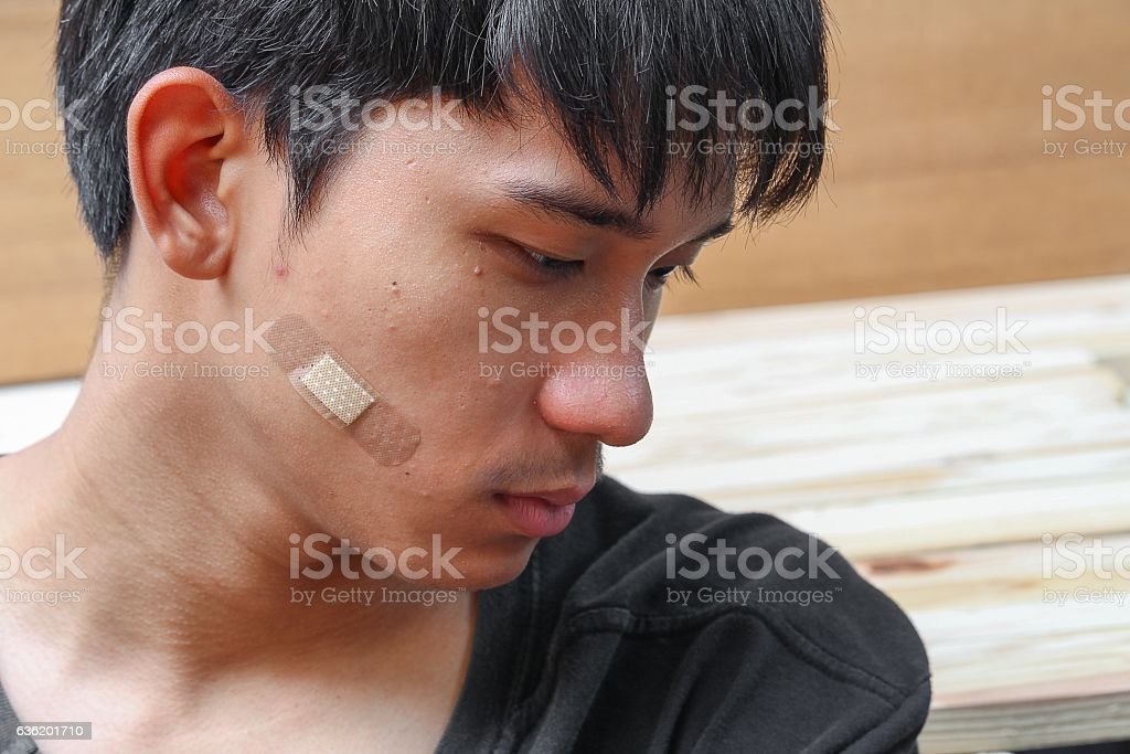 Plaster on young man Close up  injury wound cheek stock photo