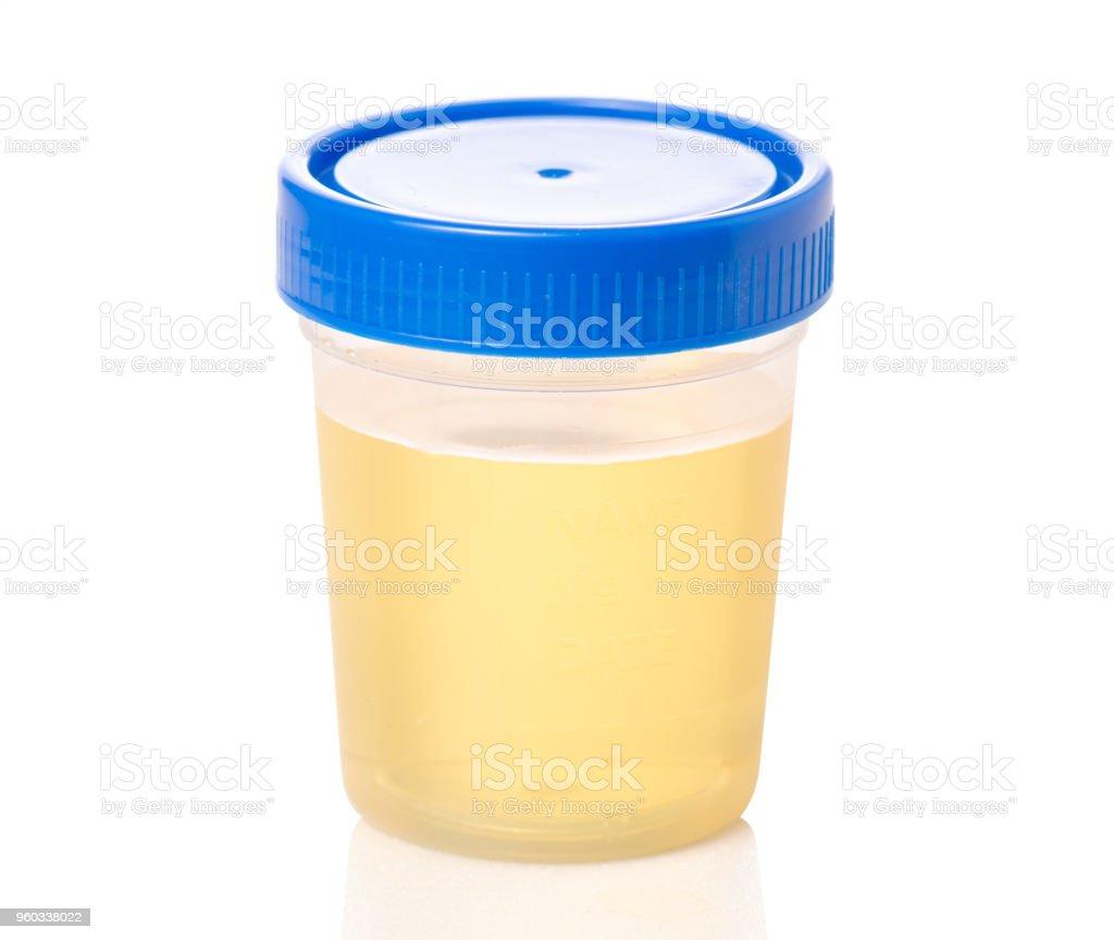 Plastic container with urine analysis stock photo