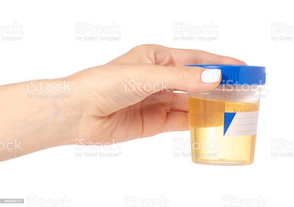 Plastic container with urine in hand analysis stock photo