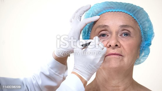 istock Plastic surgeon drawing marks on old woman face before anti-aging therapy 1143238209