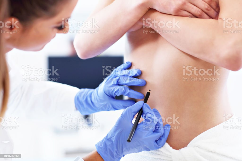 Plastic surgeon making marks on patient's body stock photo