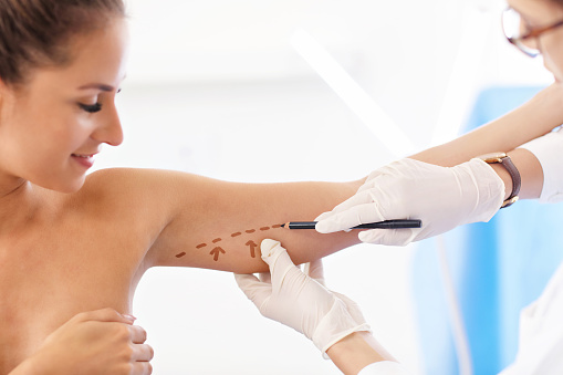 Picture of plastic plastic surgeon making marks on patient's body
