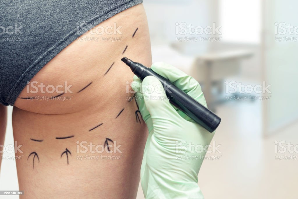plastic surgeon marking womans body for plastic surgery stock photo
