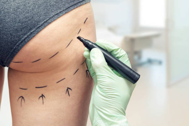 plastic surgeon marking womans body for plastic surgery - buttock stock photos and pictures