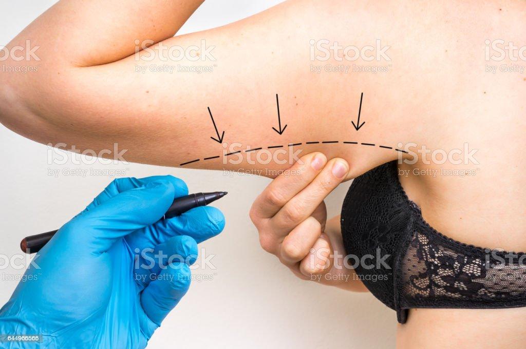 Médico cirugía plástica dibujar la línea en el brazo del paciente - foto de stock