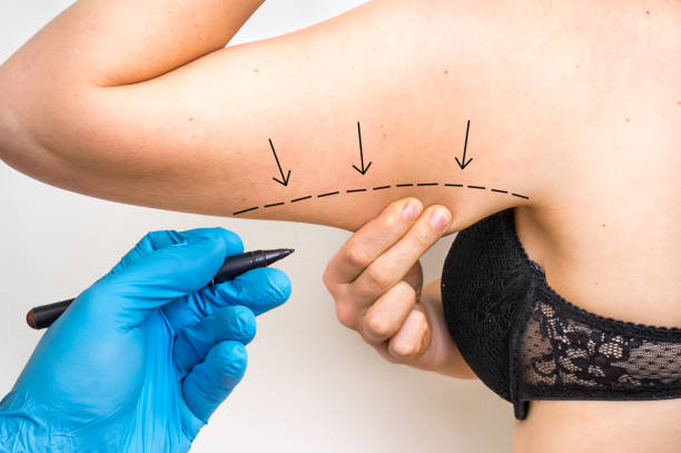 Plastic surgery doctor draw line on patient arm stock photo
