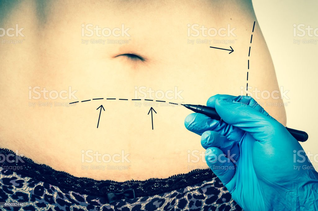 Plastic surgery doctor draw lines on patient belly stock photo