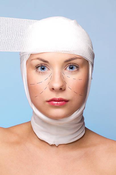 Plastische Chirurgie Gesicht Lift – Foto