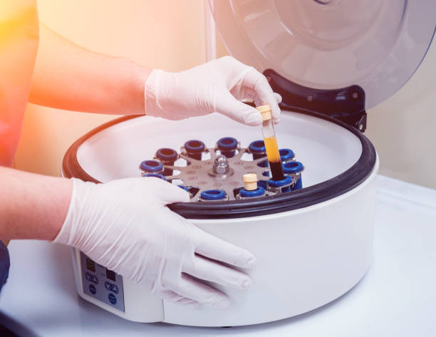 Platelet-Rich plasma preparation. Tube with blood in hands. Centrifuge. Platelet-Rich plasma preparation. Tube with blood in hands. Centrifuge. Background centrifuge stock pictures, royalty-free photos & images
