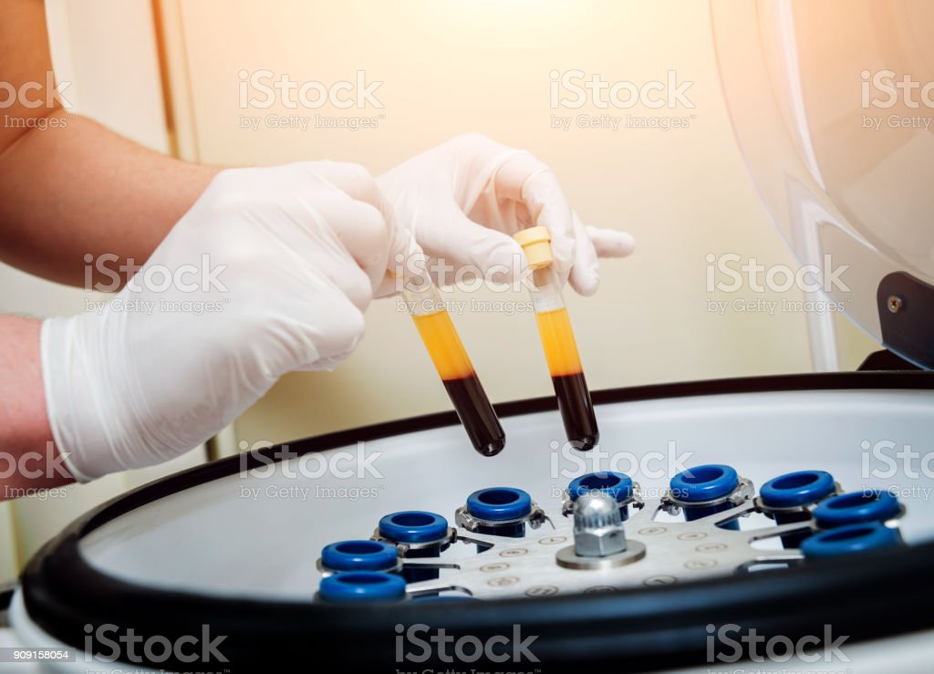 Platelet-Rich plasma preparation. Tube with blood in hands. Centrifuge. stock photo