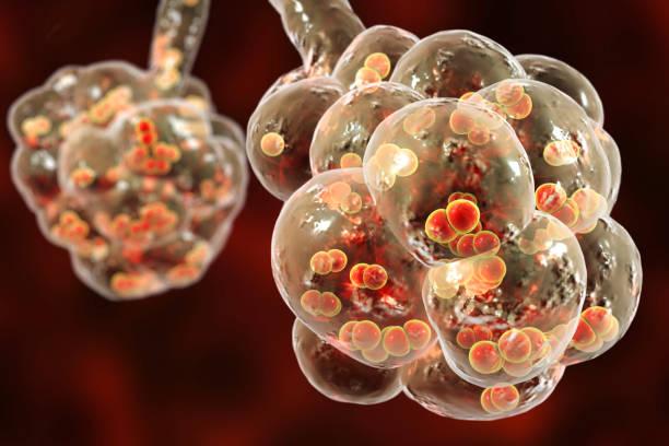 Pneumococcal pneumonia, medical concept Pneumococcal pneumonia, medical concept. 3D illustration showing bacteria Streptococcus pneumoniae inside alveoli alveolus stock pictures, royalty-free photos & images
