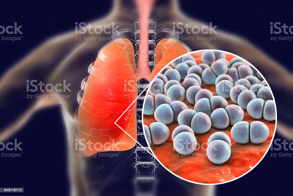 Pneumococcal pneumonia, medical concept stock photo