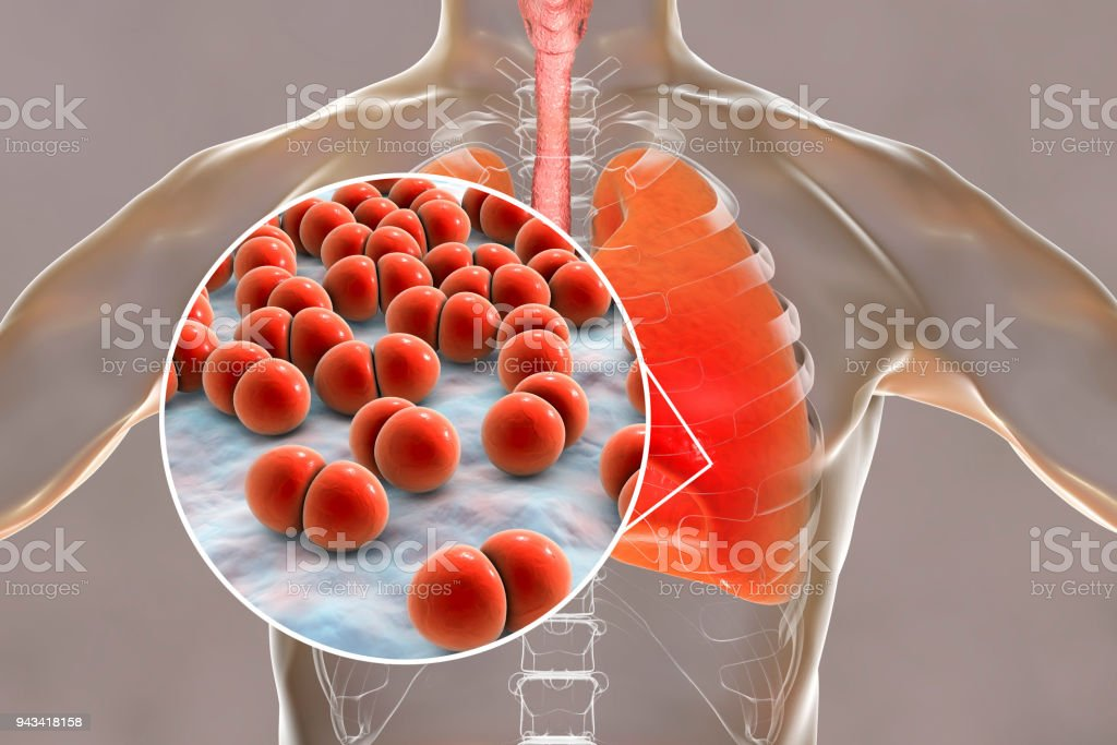 Pneumococcal pneumonia, medical concept stock photo