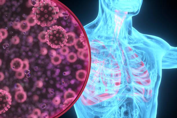 Pneumonie Coronavirus Röntgen-Lunge-Illustration – Foto