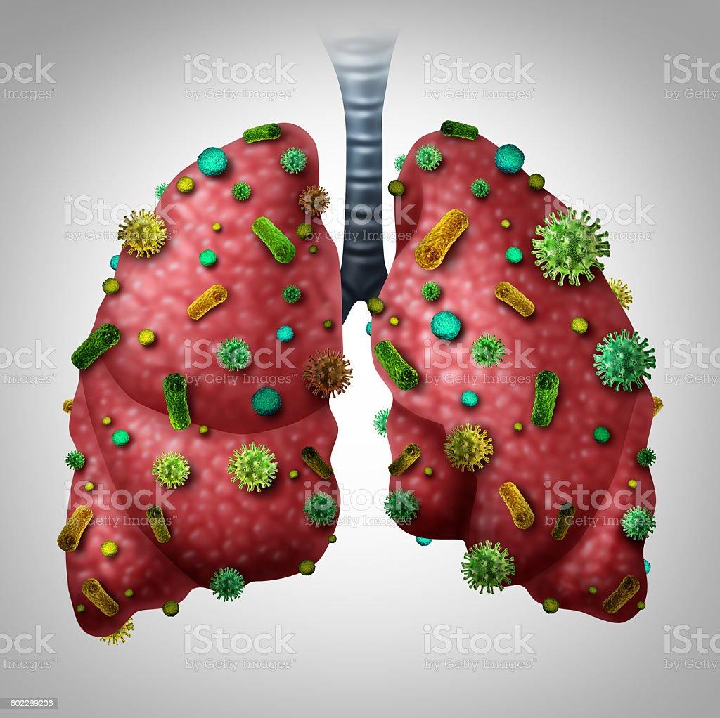 Pneumonia Infection stock photo