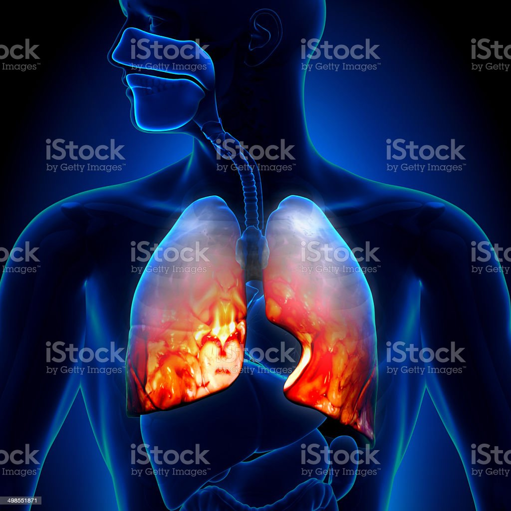 Pneumonia - Lungs Inflammatory Condition stock photo